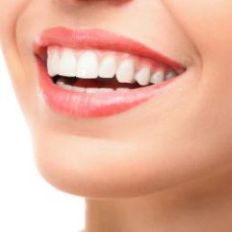 Estética dental Málaga